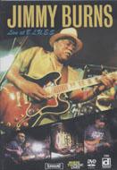 Jimmy Burns DVD